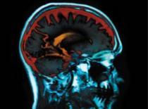 Jak rozpoznać udar mózgu i udzielić pierwszej pomocy