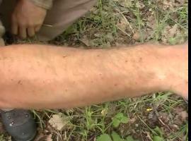 Jak chronić się przed komarami w naturalny sposób